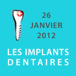 Les Implants Dentaires